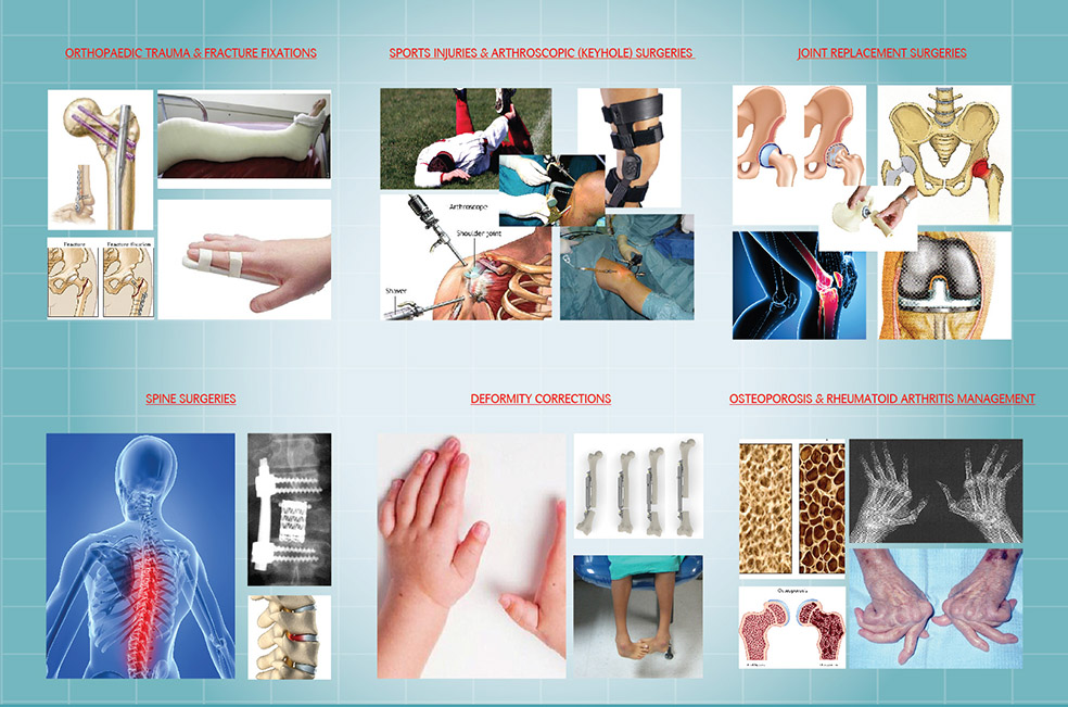Ortho brochure_aw